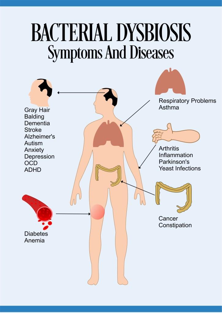 bacterial-dysbiosis