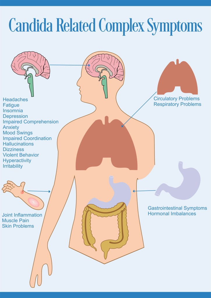candida-related-complex-symptoms