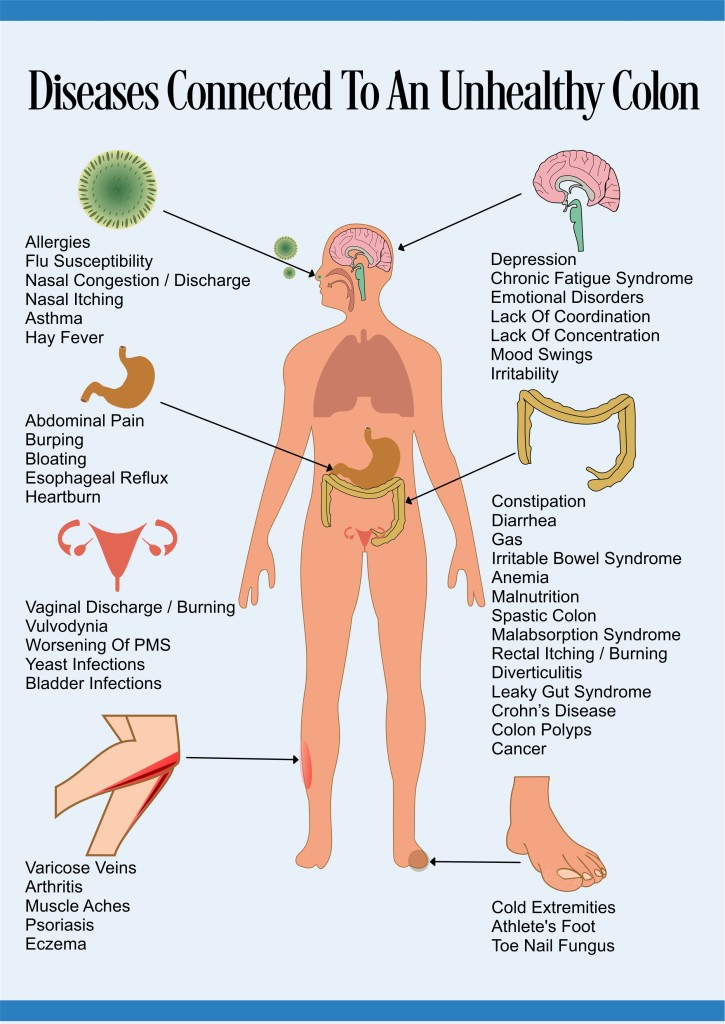 unhealthy-colon-diseases